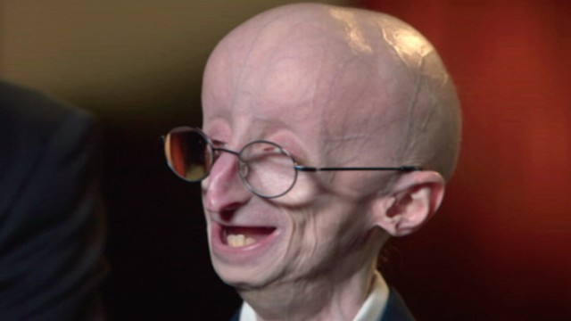Video: The Triumphant Story of Sam Berns, Progeria and Math