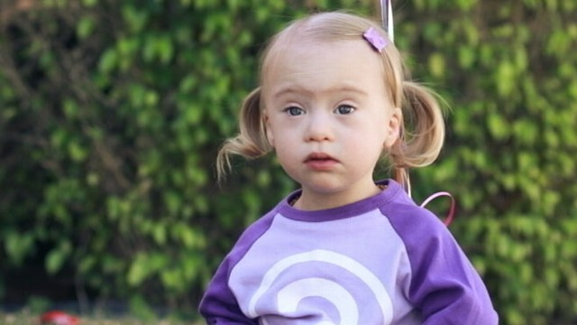 Video: Living With Down Syndrome