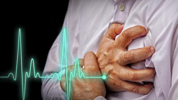 Sudden cardiac arrest may have warning signs after all