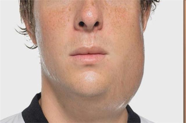 Facts about Mumps by Summer