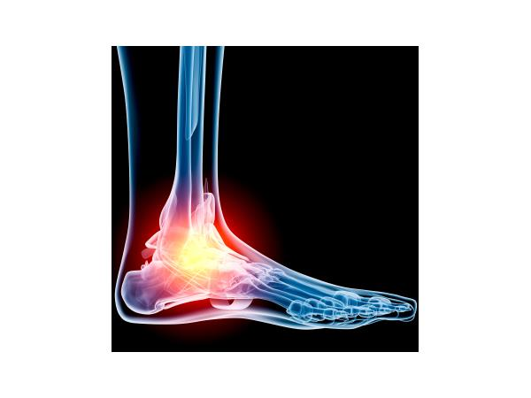 Chronic Foot Pain with Dr. Roy Mathews DPM