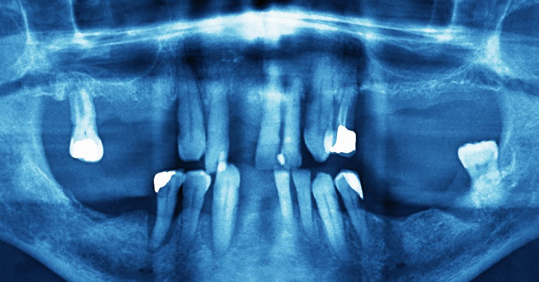 Ask Well: How Often Should You Get Dental X-Rays?
