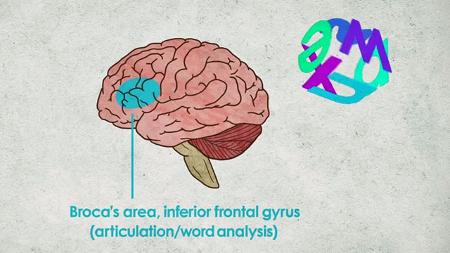 What's Going On Inside A Dyslexic Student's Brain?