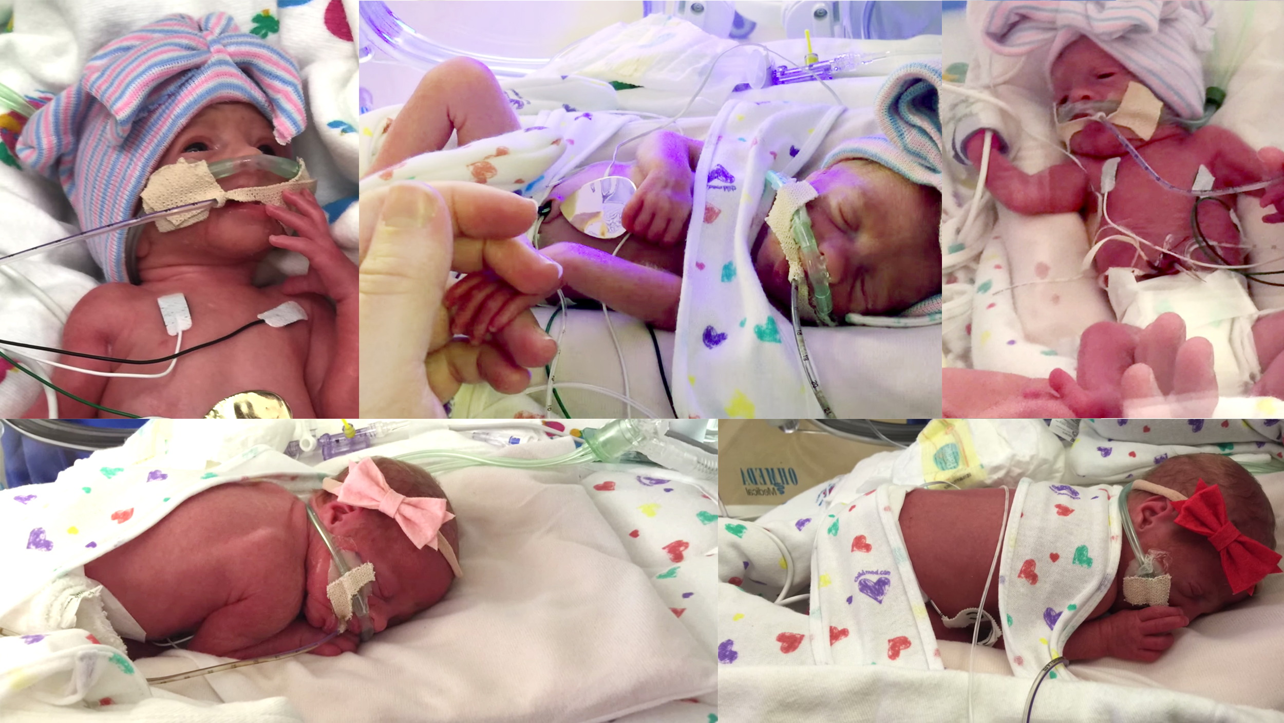Mom of all-girl quintuplets describes holding babies for first time
