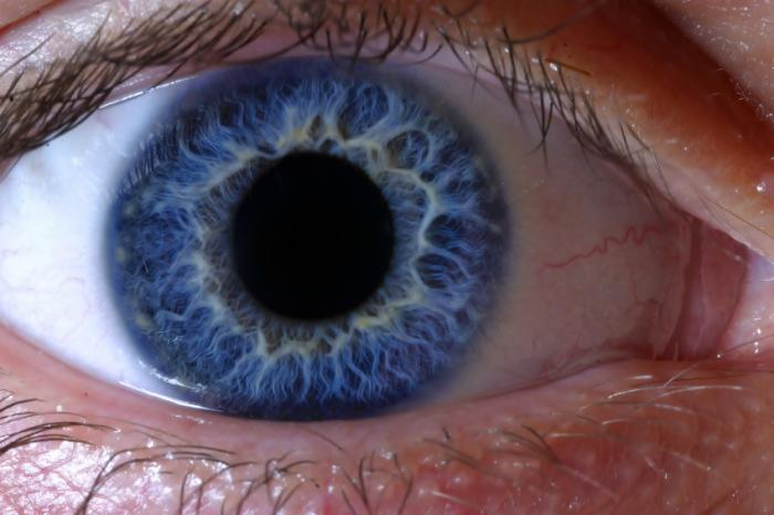 Cure for rare form of color blindness steps closer with novel gene insight
